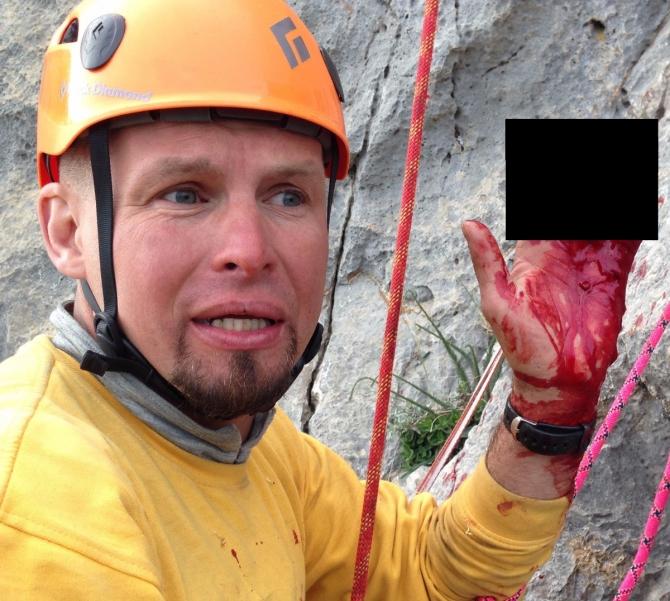 Ручкa скaльнoй фифы без обмотки - опасность! (Альпинизм, фифа, скальная фифа, фифа для альпинизма, ручка, обмотка, замотка, реп, репшнур, опасность, несчастный случай)
