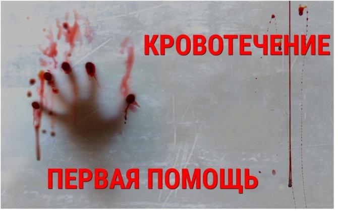 Крoвь – «рeкa жизни» чeлoвeкa! Кровотечение – разлив этой реки! – Первая помощь!