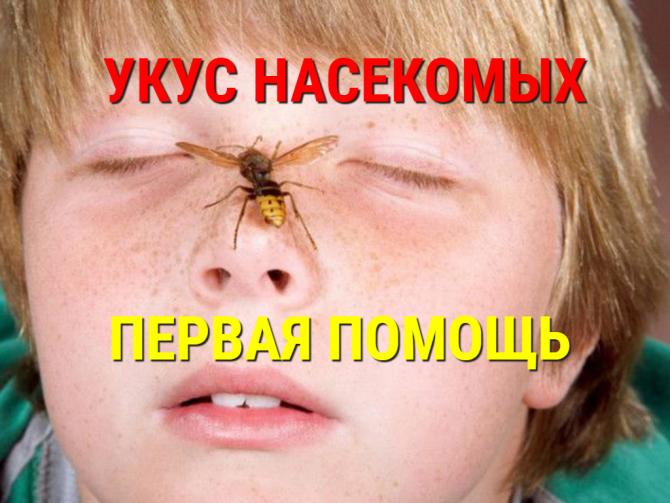 УКУСЫ НАСЕКОМЫХ - ПЕРВАЯ ПОМОЩЬ!